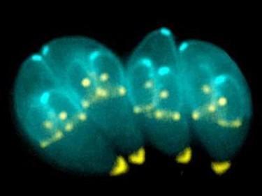 你知道这些人体十大寄生虫吗?