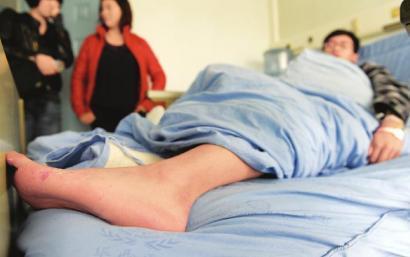 四川大学华西医院,小伙脚上的小伤口导致生命危险
