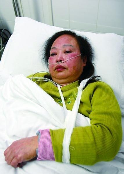 被扭断手腕的收费员邓智帼正在医院接受治疗 记者 龙在全 摄
