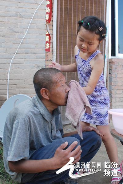 给患有先天性智障和严重的癫痫病的叔叔洗脸