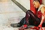 两拾荒者因一塑料瓶大打出手双方满身是血