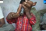 实拍印度巨手男孩 每只手重8公斤