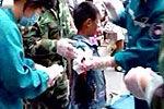 9岁男童投喂黑熊被咬断右臂被截肢
