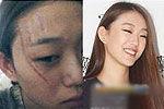 韩名模参加选秀遭毁容 疑激进观众所为